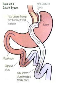 roux-en-gastric